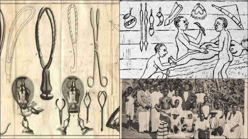 The Ancient Kingdom Of Uganda Practiced & Perfected Caesarian Section Long Before Europeans