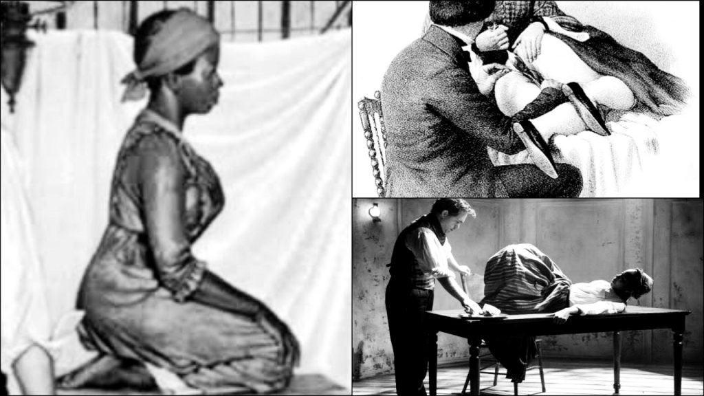Black Woman Who Underwent 34 Vaginal Surgeries Without Anesthesia By Renowned Father Of Gynecology 2