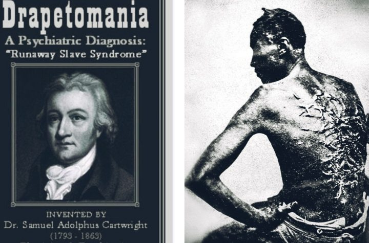 In 1851 A White Psychologist Diagnosed Escape Attempts By Slaves As Mental Illness Curable By Whipping