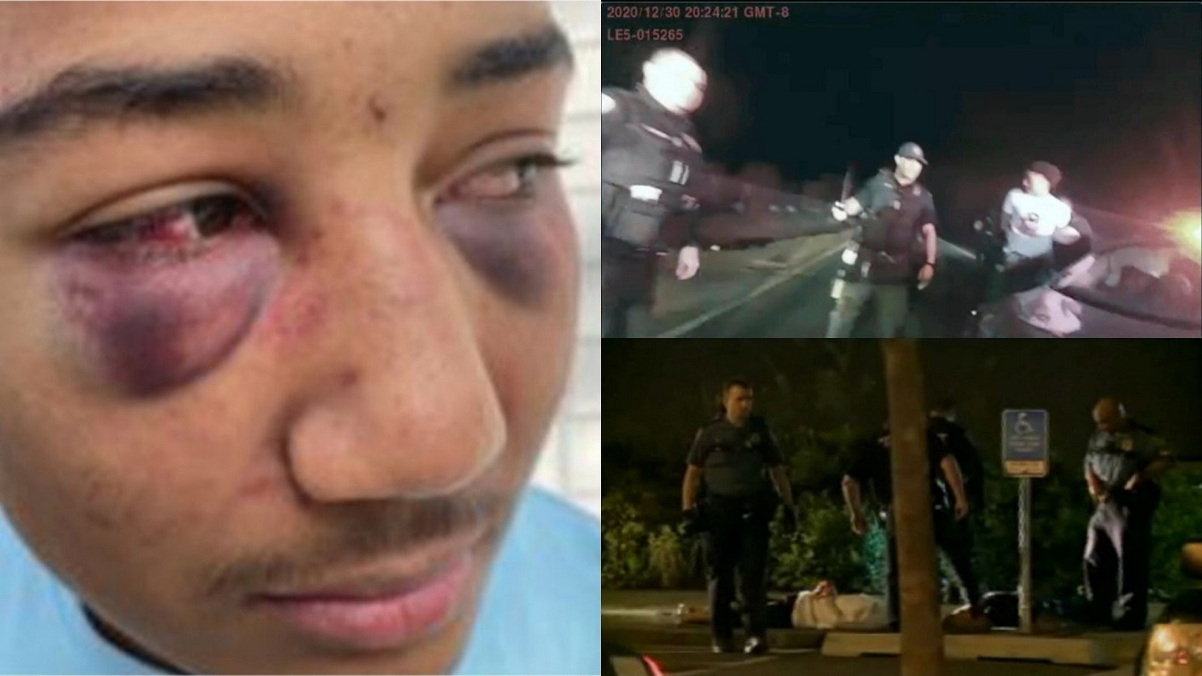 2 White California Cops Indicted For Beating Black Teen Leaving Boot Print On His Face